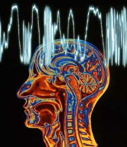 Epilepsy: MRI brain scan and EEG trace